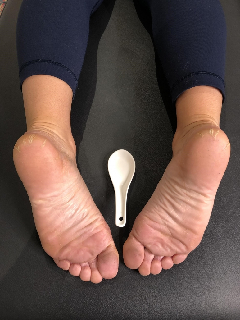 The best treatment for plantar fasciitis that we know of