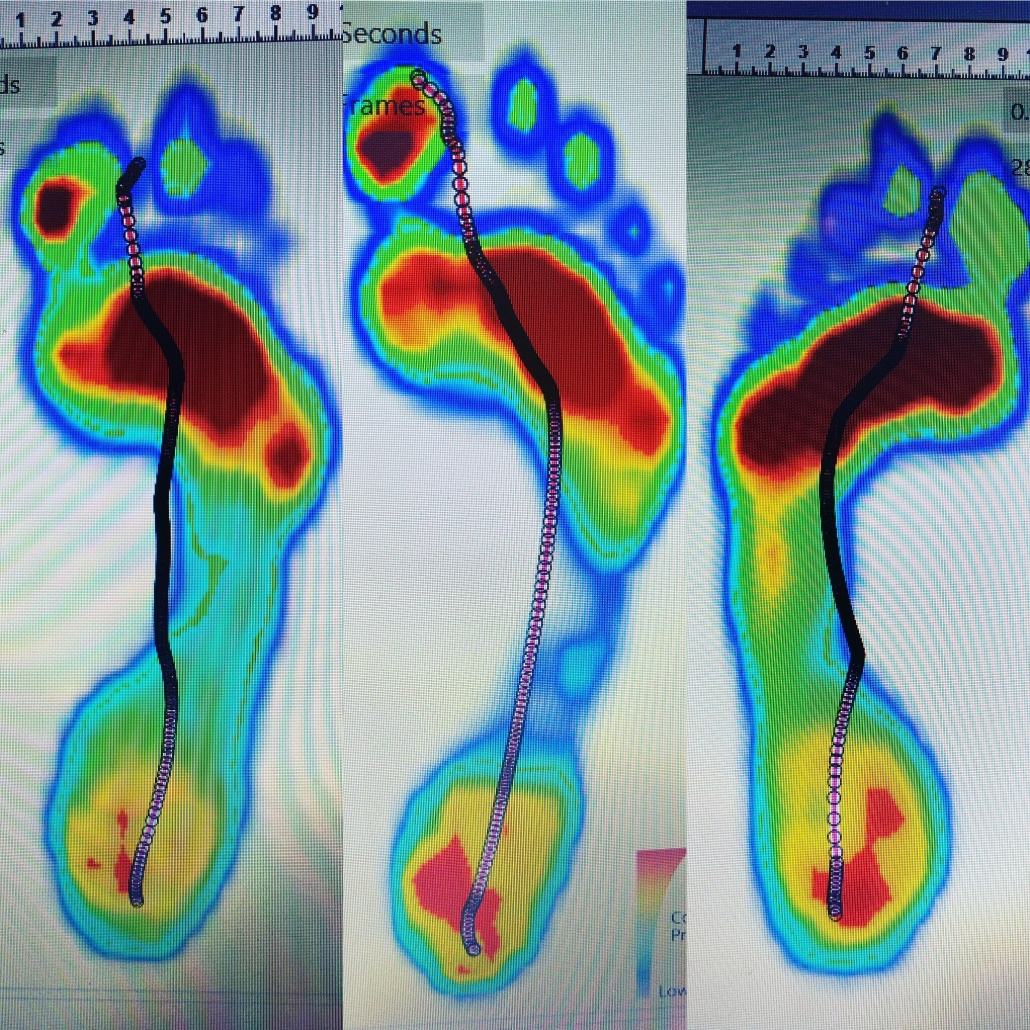 Diagnosis for knee pain with gait analysis