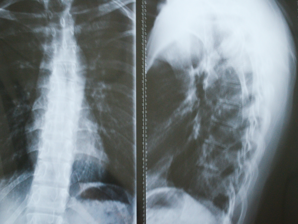 x ray diagnosis for back pain
