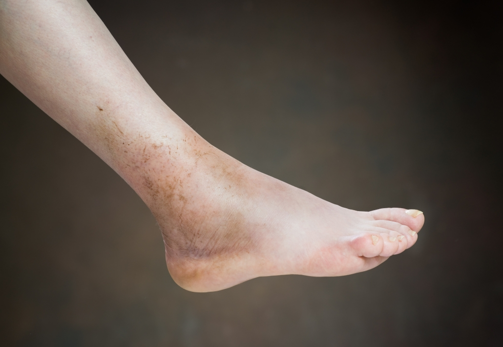 Image depicting ankle sprain that will likely lead to sharp ankle pain when walking.