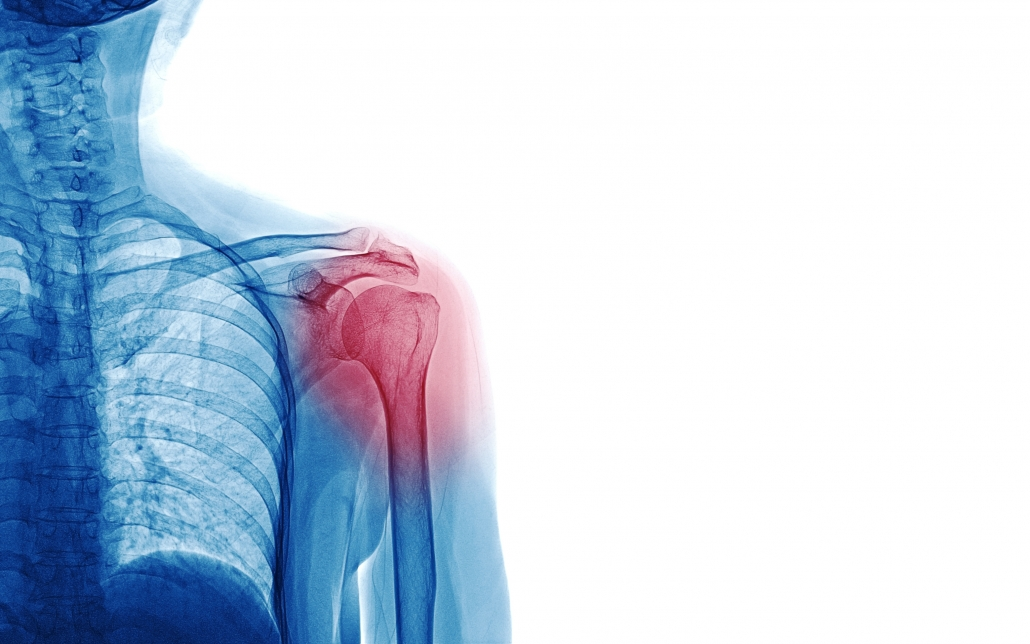 Image of shoulder x ray showing structures that may cause pain.