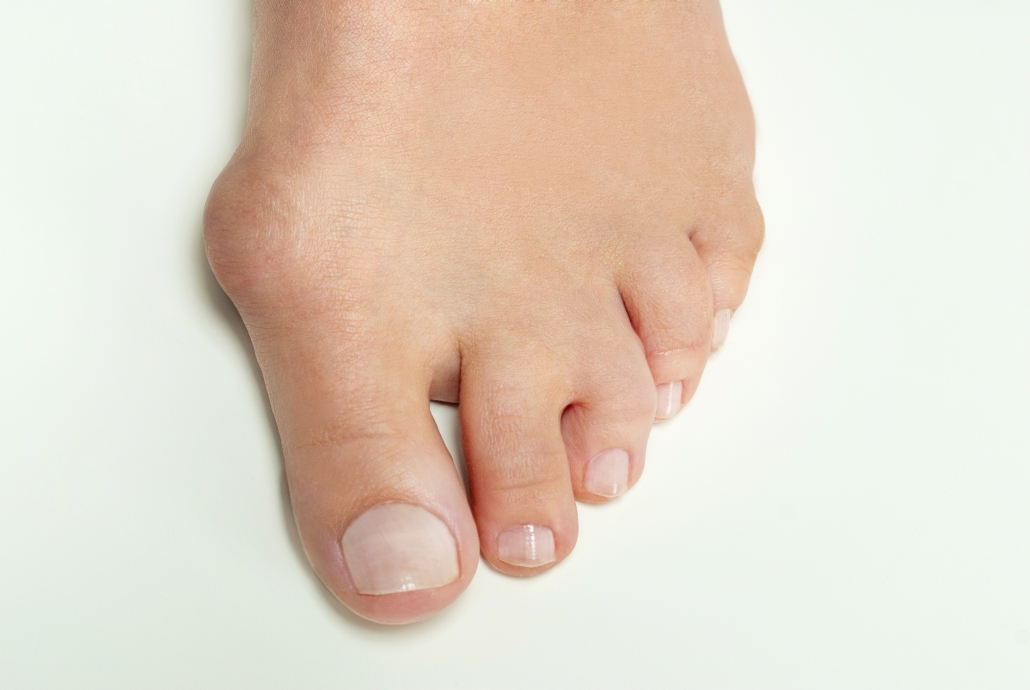 Picture of a bunion, education on the use of custom orthotics.