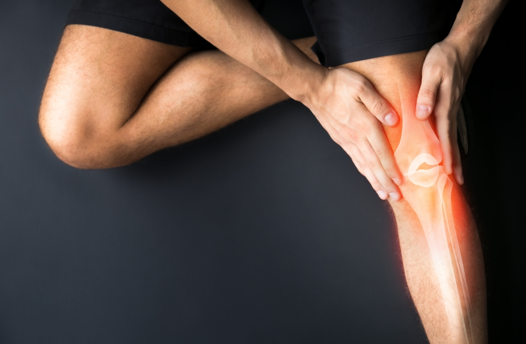 Image depicting knee pain that has been caused by flat feet.